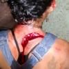 Icó-CE: Casal se desentende por causa de droga, e mulher é lesionada com gargalo de garrafa, veja!